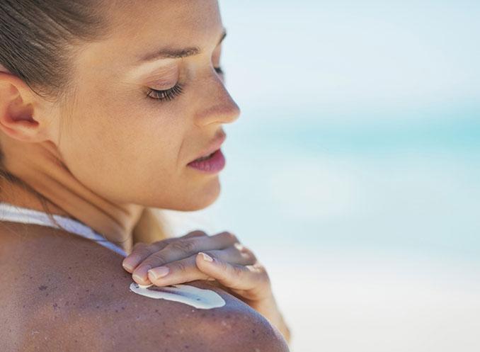 FRau mit Sonnenbrand cremt ihre Haut ein