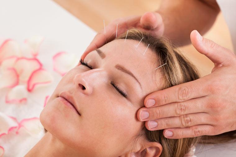 Alternativbehandlung Akupunktur