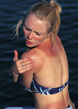 Naturkosmetik bei Sonnebrand