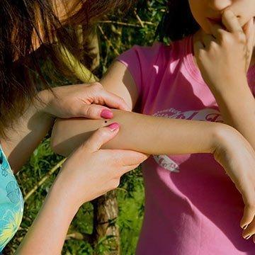 Erste-Hilfe-Tipps: Zeckenbiss, was tun?