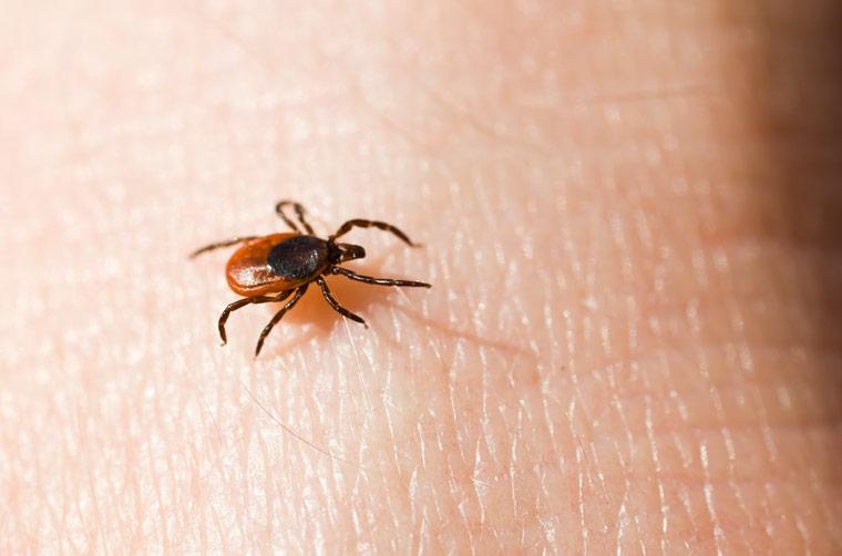 Zeckensaison - Anstieg der FSME-Infektionen