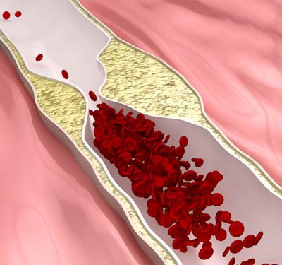 Cholesterin lagert sich an beschädigten Innenwänden von Blutgefäßen ab.