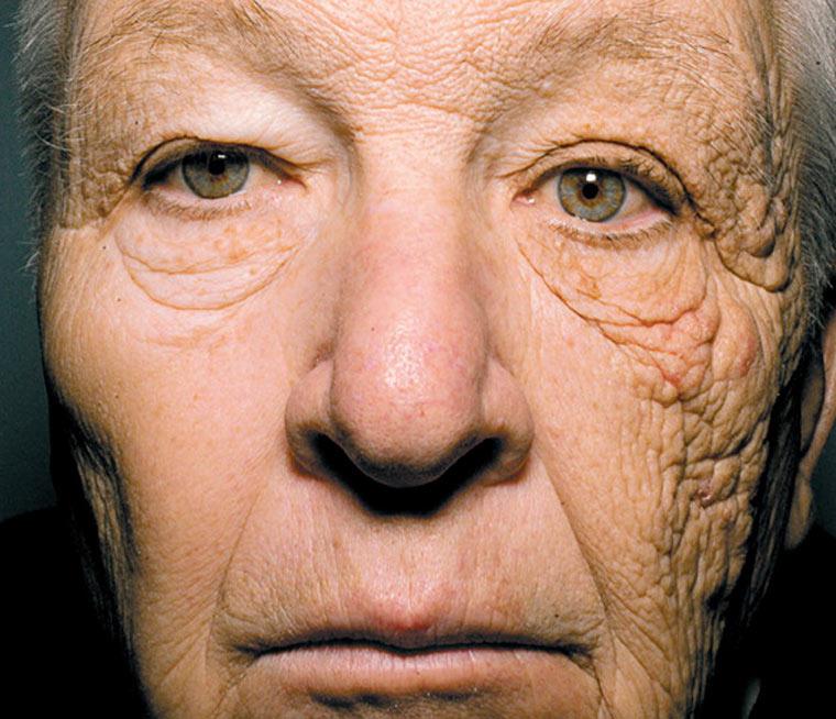 Das sind die Folgen von jahrelanger Sonneneinstrahlung