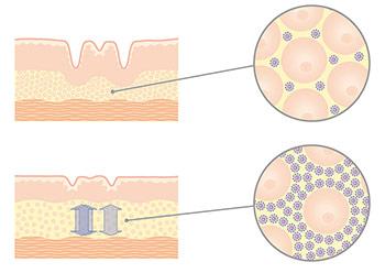 Hyaluron wird in die Haut geschleust