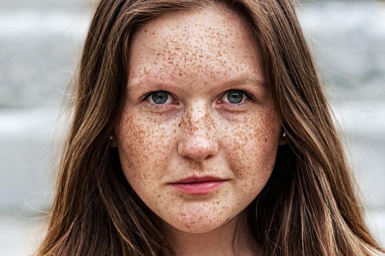 Gesicht, Hand und Hals: Altersfleck, Sommersprossen, Leberfleck oder Muttermal?
