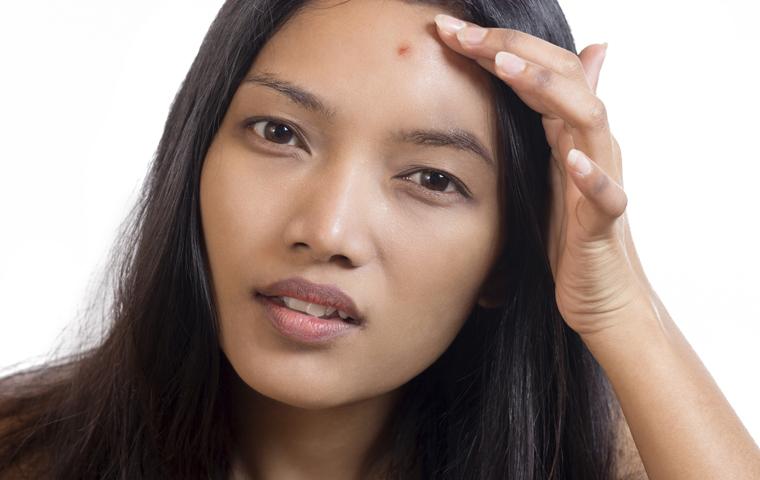 Akne ohne Tabletten behandeln: Was Sie bei Stressakne tun können