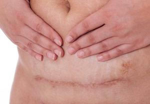 Kaiserschnitte haben Nebenwirkungen